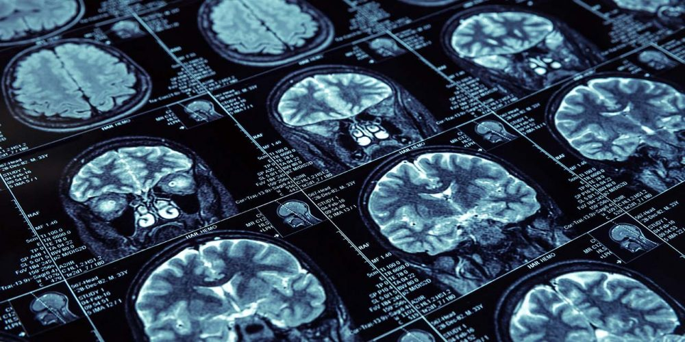 [Etude] Impact de la réflexologie plantaire sur l'activité cérébrale