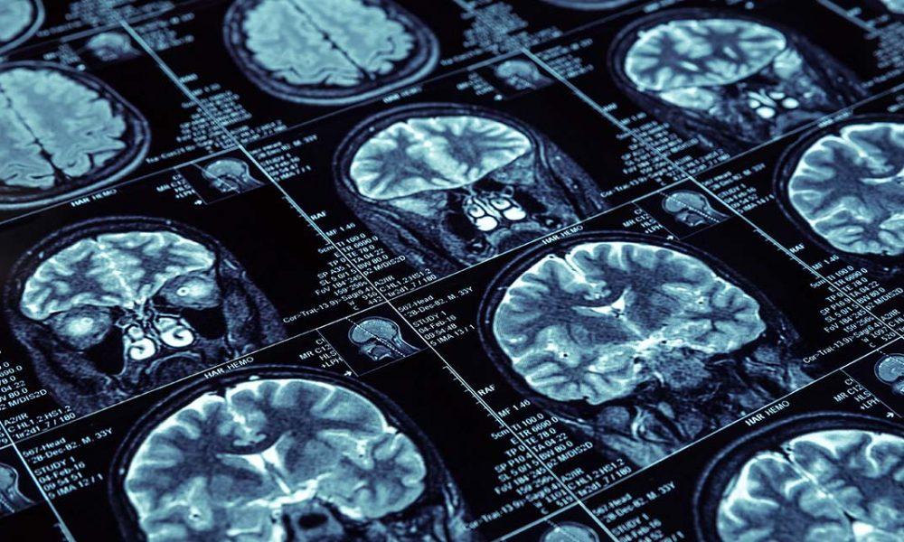 imagerie cérébrale